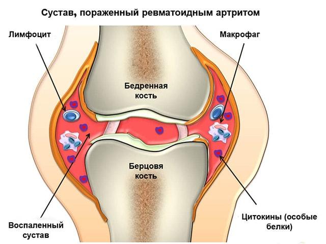 Ревматоиден артрит dieta