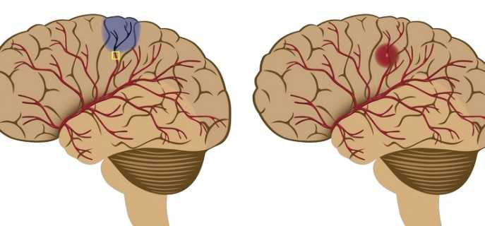 Причины и последствия инсульта правой стороны мозга