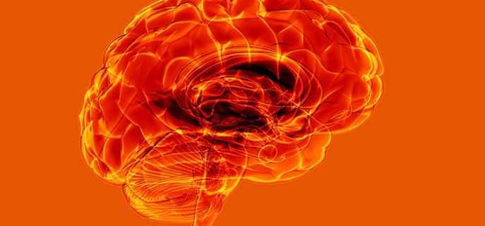 Причины и профилактика инсульта