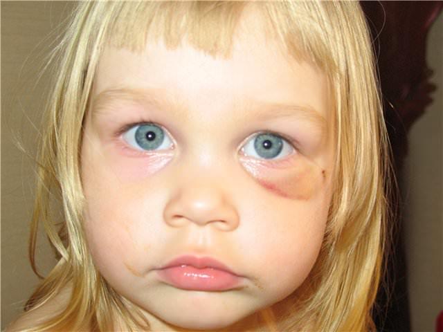 Ребенок с гематомой