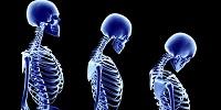 Симптомы болезни Бехтерева у женщин и мужчин методы лечения в домашних условиях