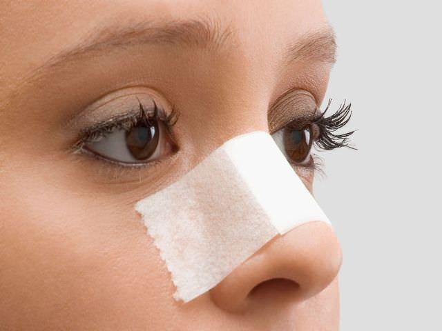 лечение носа после перелома
