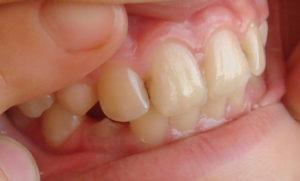 предотвратить кариес зубов