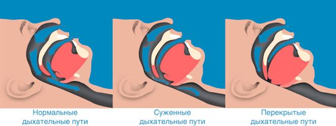 Возможные осложнения апноэ