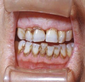 Как эффективно избавиться от зубного налета в домашних условиях