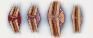 Что такое консолидированный перелом?