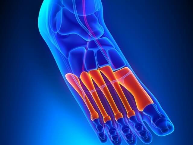 Плюсневые кости