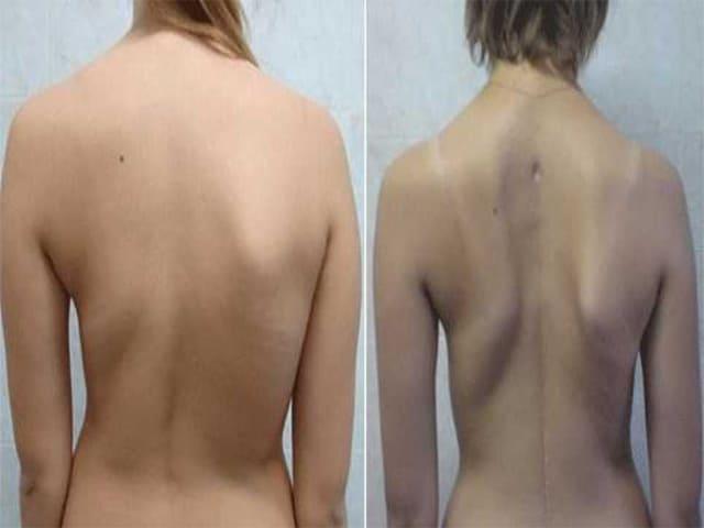 Правосторонний сколиоз грудного отдела позвоночника