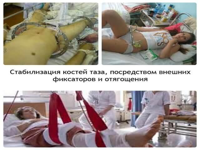 Хирургическое лечение травмы