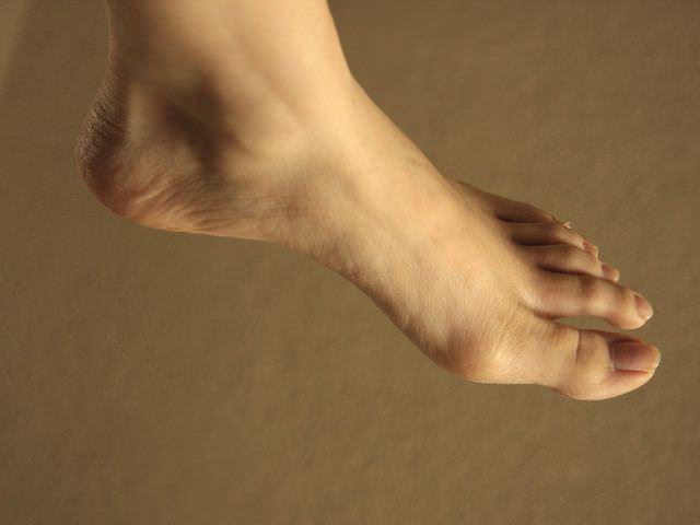 причины вывиха ноги
