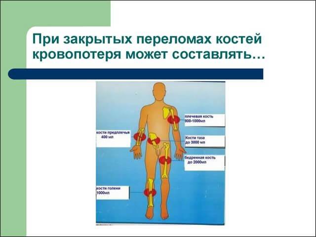 Схема кровопотери