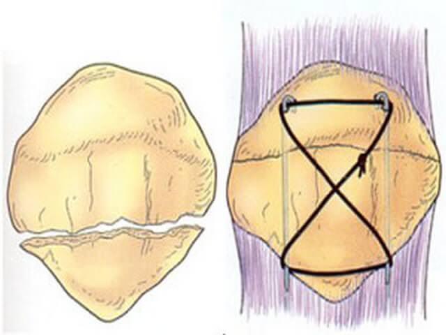 Соединение костей проволокой