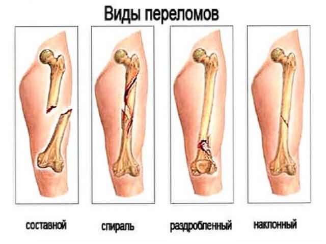 Классификация повреждений