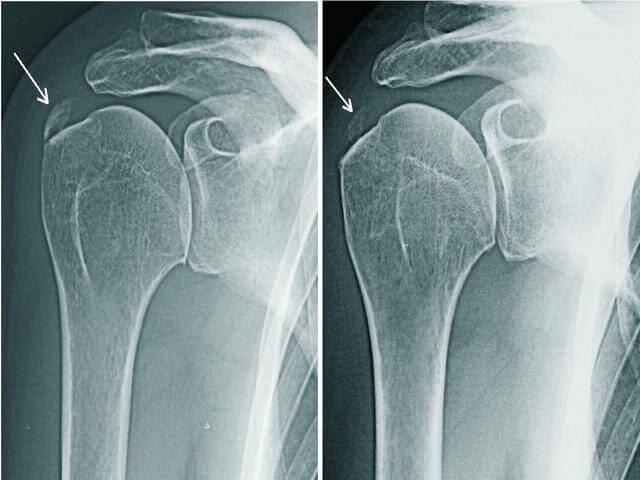 Рентгеновский снимок плечевого сустава