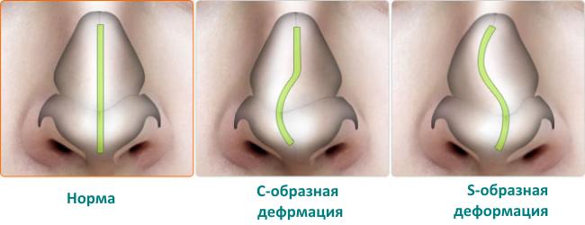 Симптомы и лечение ушиба носа