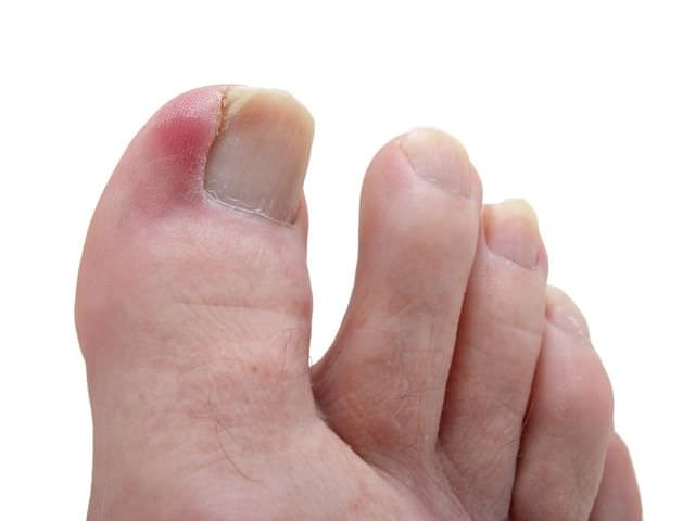 Сильно болит палец