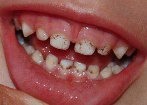 Симптомы и лечение серого налета на зубах