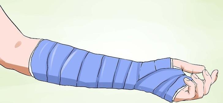 Перелом руки (открытый и закрытый)