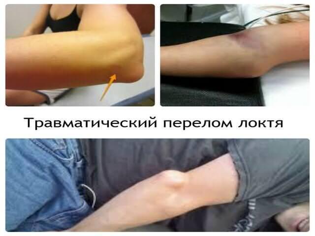 Сильное травмирование руки
