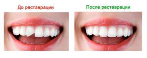 плюсы и минусы виниров на зубы