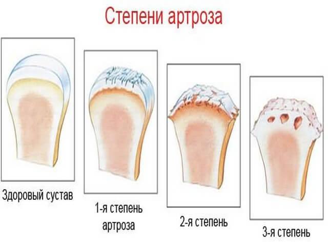 Схема развития артроза плечевого сустава