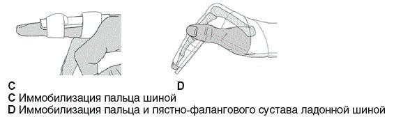 Перелом пятой пястной кости