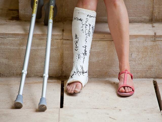 Нога в гипсе