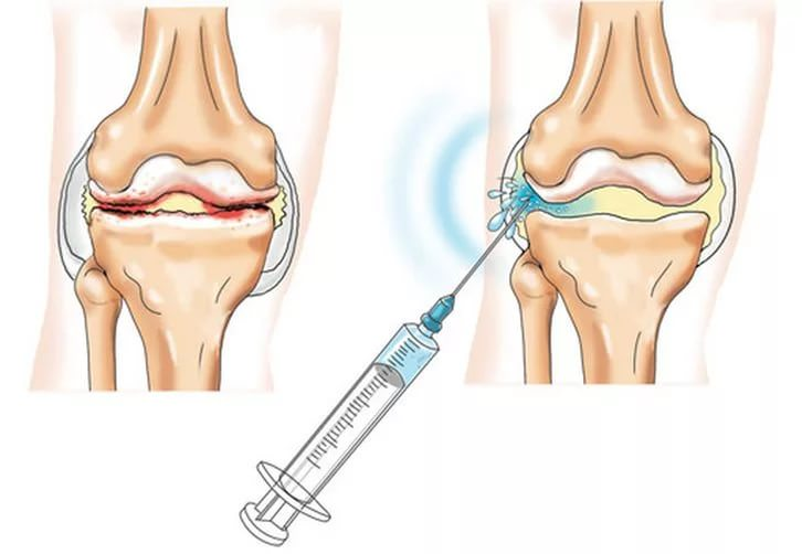 Блокада колена