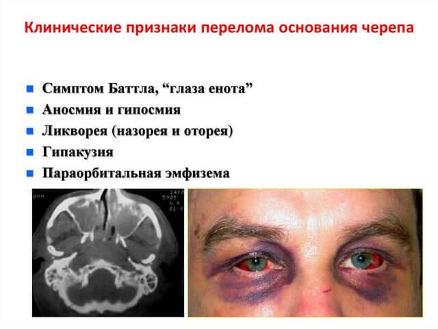 Главные симптомы перелома костей головы