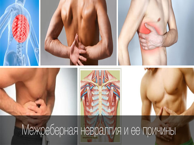 Почему болит правый бок под ребром