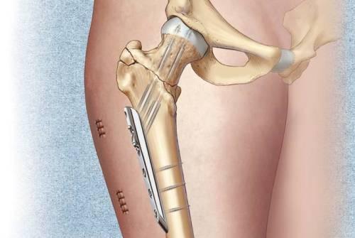 Лечение чрезвертельного перелома бедра