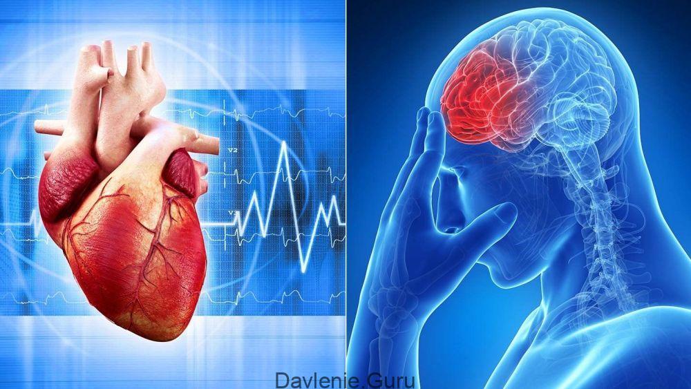 Риск развития инфаркта и инсульта