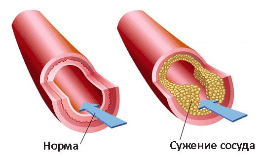 Сужение просвета артерий