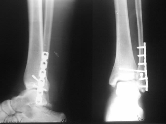Рентген перелома щиколки со смещением