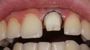 проводится препарирование зуба под металлокерамическую коронку и зачем оно нужно
