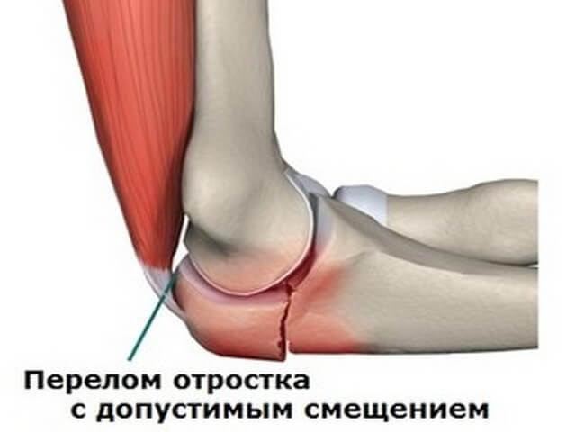 Схема повреждения руки