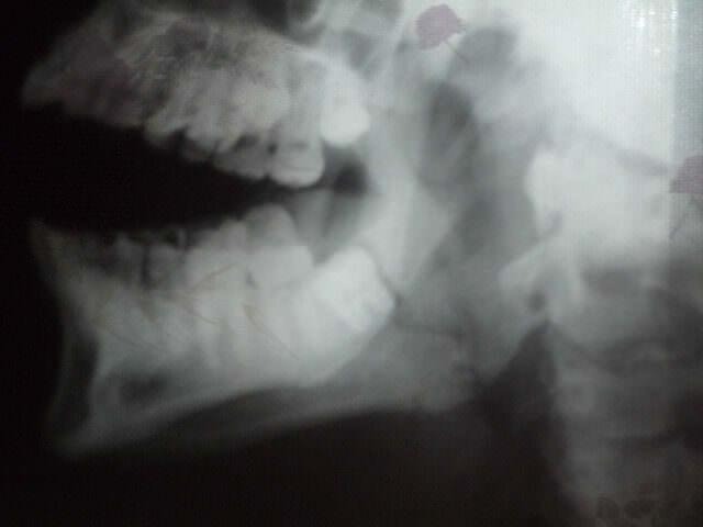 Рентгеновский снимок челюсти