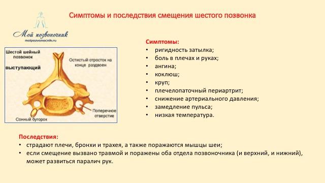 Симптомы смещения шестого