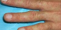 Признаки онихолизиса ногтей на ногах и руках способы лечения народными средствами