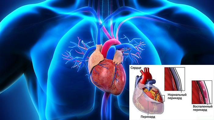 Инфекционное поражение сердечной мышцы