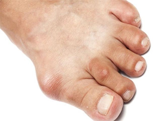 Заболевание на ноге