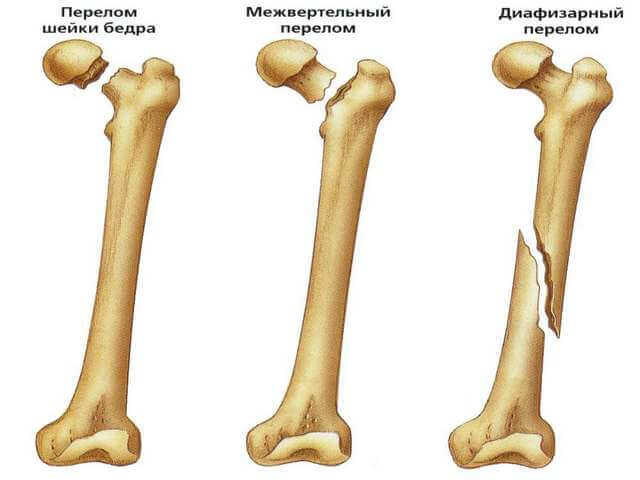 Разновидность травмы кости