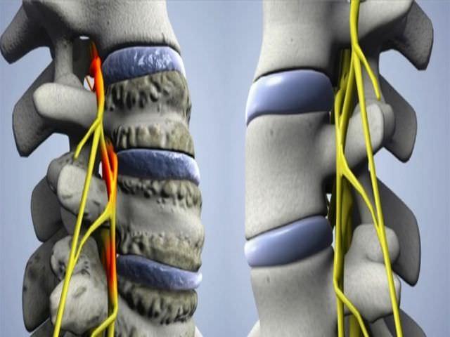 Заболевание суставов позвоночного столба