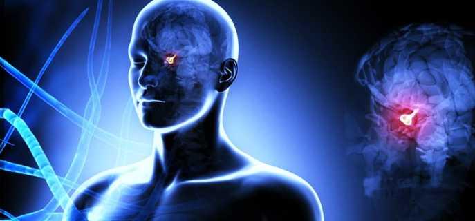 Лечение и симптомы опухоли гипофиза