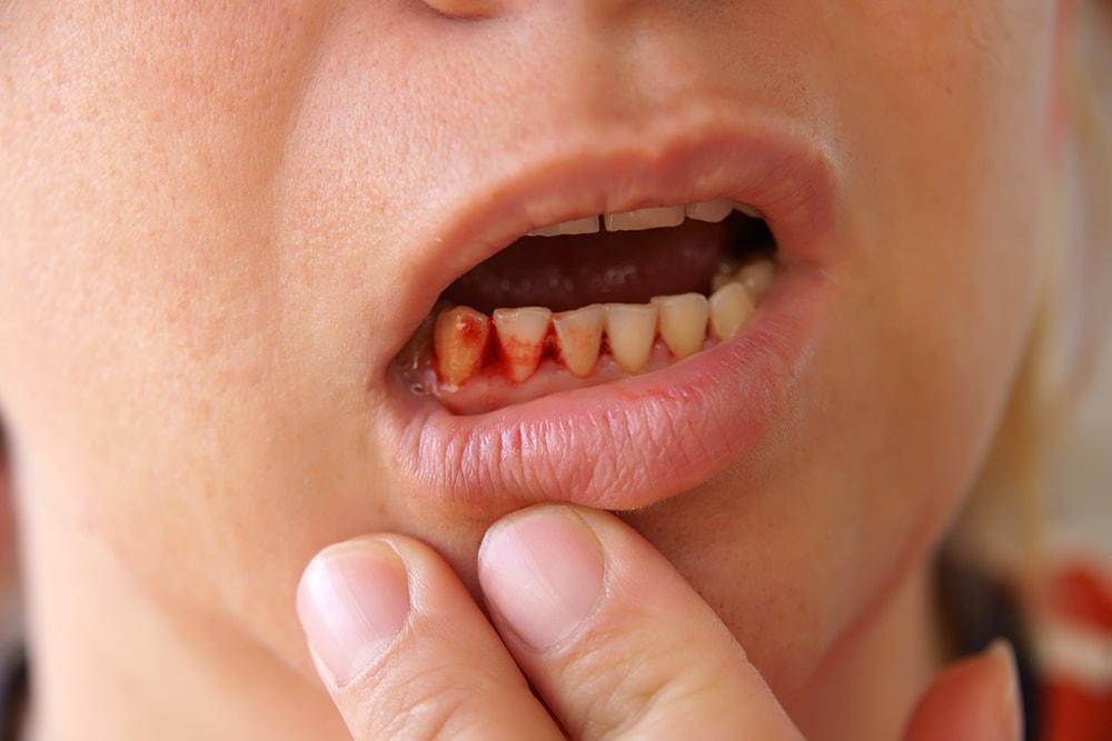 Кровотечение челюсти