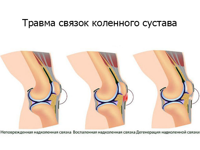 Травма связок