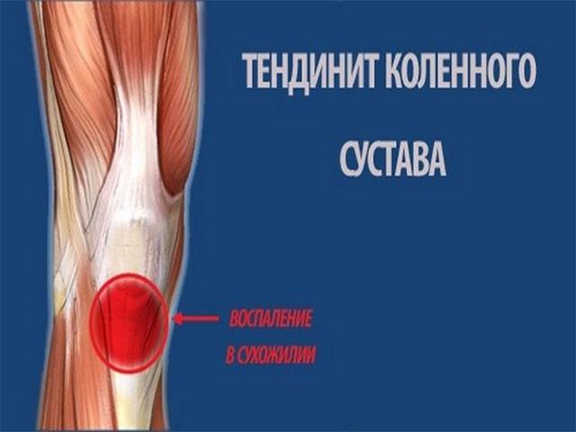 Причины и симптомы болей в колене сбоку с внутренней стороны