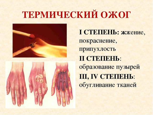 Ожоги кожи руки