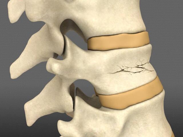 Травма кости