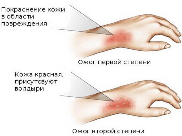 Симптомы возникновения травмы